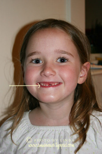 Makennas_missing_front_tooth